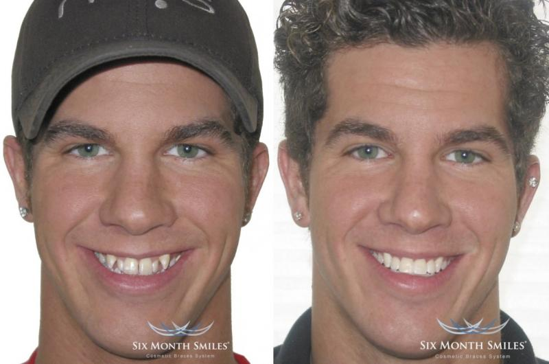 before and after braces, adult male